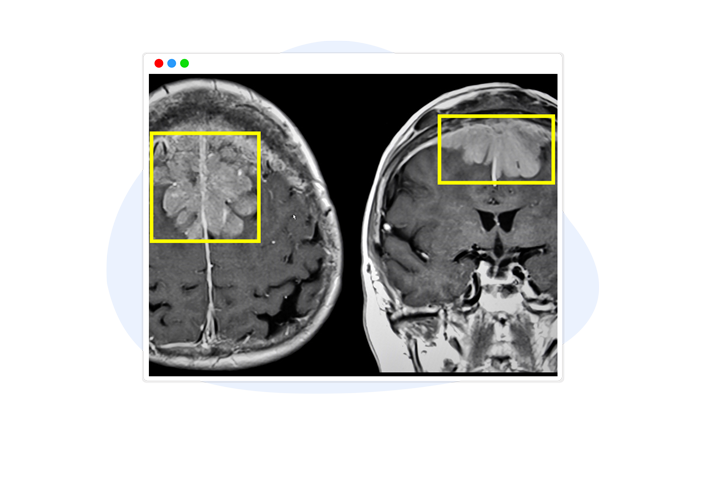 Medical Image Annotation